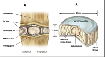 Figure 1: Disc Anatomy