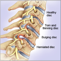 Figure 4: Degenerative Disc Diseases